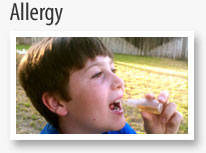 Allergy Drops